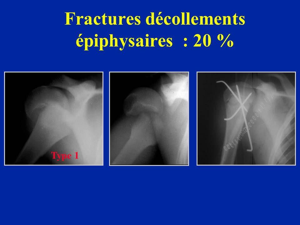 Fractures décollements épiphysaires : 20 % Type 1