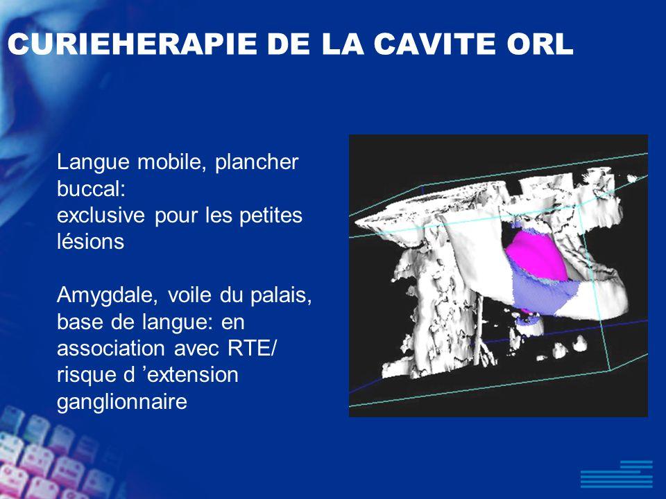 CURIEHERAPIE DE LA CAVITE ORL Langue mobile, plancher buccal: exclusive pour les petites lésions Amygdale, voile du palais, base de langue: en associa