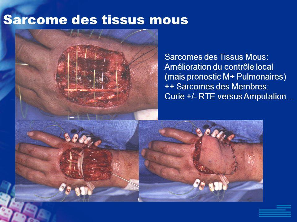 Sarcome des tissus mous Sarcomes des Tissus Mous: Amélioration du contrôle local (mais pronostic M+ Pulmonaires) ++ Sarcomes des Membres: Curie +/- RT
