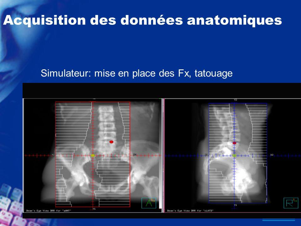 Acquisition des données anatomiques Simulateur: mise en place des Fx, tatouage