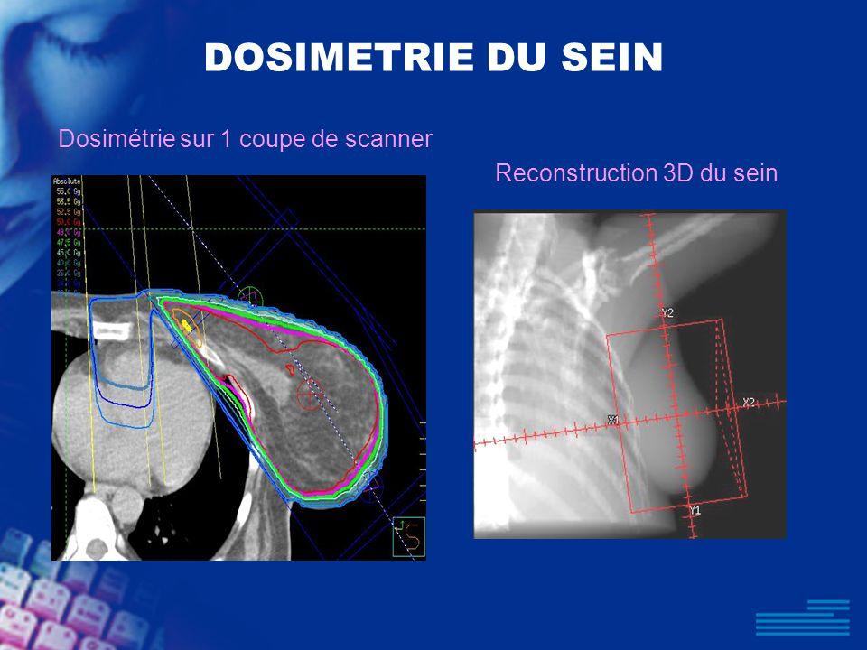 DOSIMETRIE DU SEIN Dosimétrie sur 1 coupe de scanner Reconstruction 3D du sein