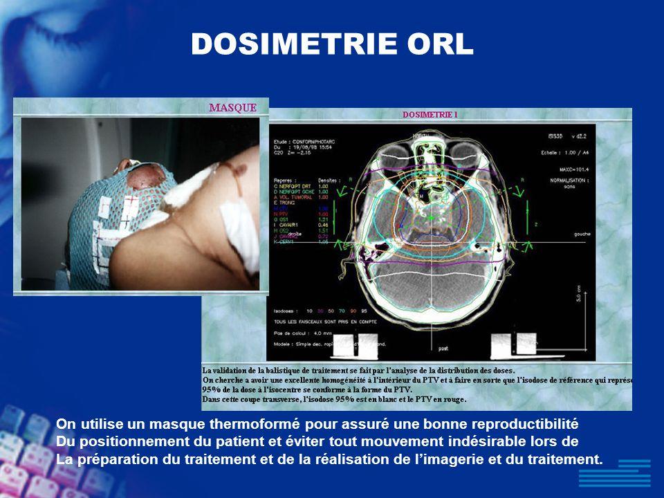 DOSIMETRIE ORL On utilise un masque thermoformé pour assuré une bonne reproductibilité Du positionnement du patient et éviter tout mouvement indésirab