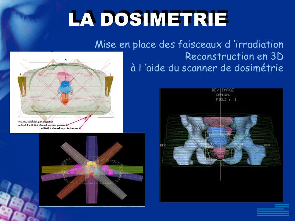 LA DOSIMETRIE Mise en place des faisceaux d irradiation Reconstruction en 3D à l aide du scanner de dosimétrie