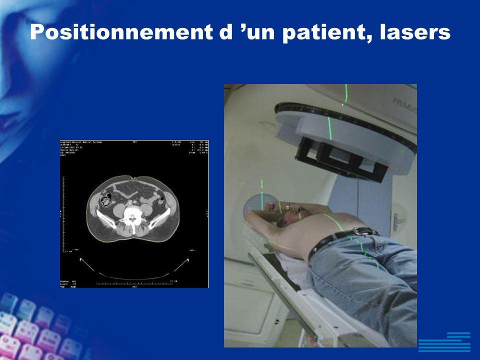 Positionnement d un patient, lasers