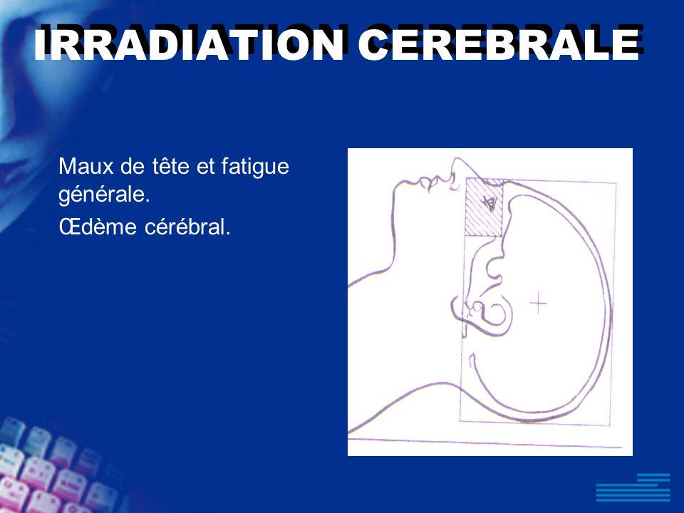 IRRADIATION CEREBRALE Maux de tête et fatigue générale. Œdème cérébral.