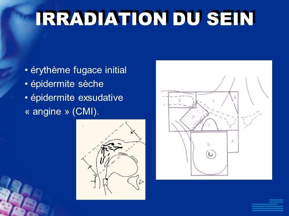 IRRADIATION DU SEIN érythème fugace initial épidermite sèche épidermite exsudative « angine » (CMI).