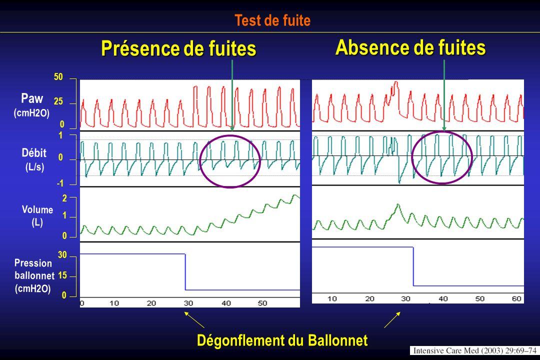 Test de fuite 25 50 0 0 1 1 2 0 15 30 0 Paw (cmH2O) Débit (L/s) Volume (L) Pression ballonnet (cmH2O) Dégonflement du Ballonnet Présence de fuites Abs