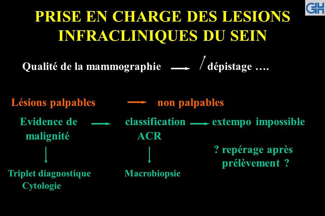 Classification en six catégories des images mammographiques en fonction du degré de suspicion de leur caractère pathologique (en dehors des images construites et des variantes du normal).