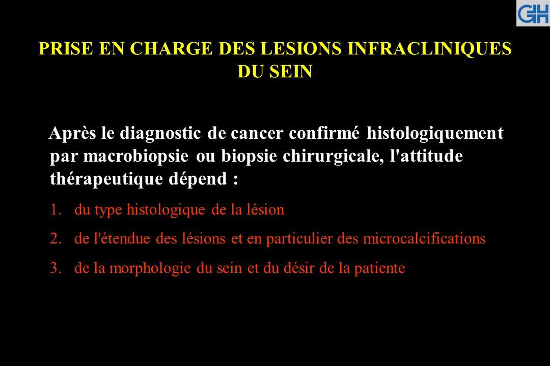 PRISE EN CHARGE DES LESIONS INFRACLINIQUES DU SEIN Après le diagnostic de cancer confirmé histologiquement par macrobiopsie ou biopsie chirurgicale, l