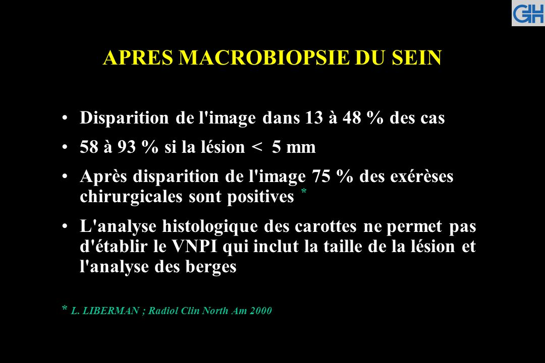 APRES MACROBIOPSIE DU SEIN Disparition de l'image dans 13 à 48 % des cas 58 à 93 % si la lésion < 5 mm Après disparition de l'image 75 % des exérèses