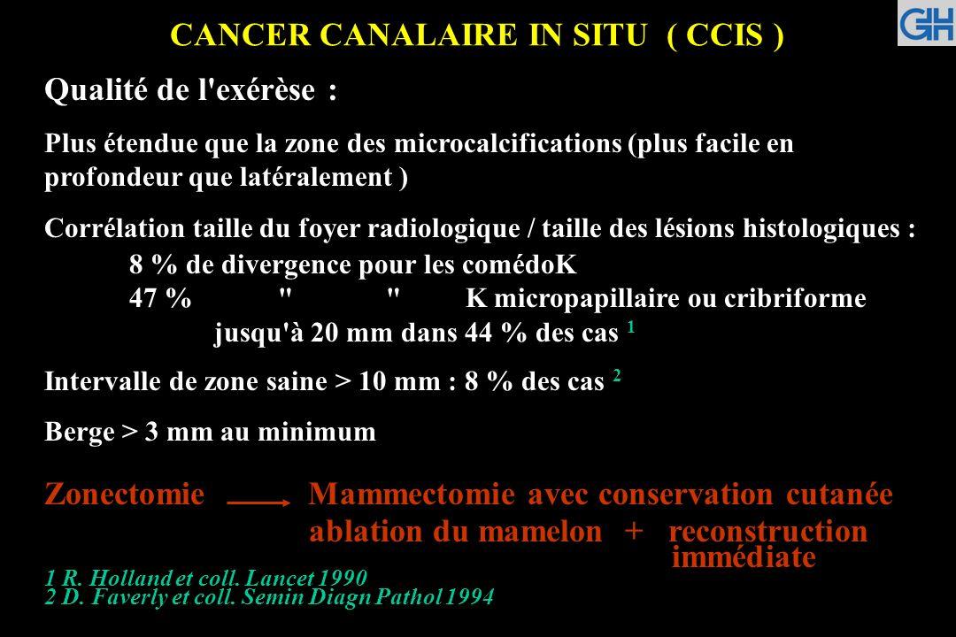 CANCER CANALAIRE IN SITU ( CCIS ) Qualité de l'exérèse : Plus étendue que la zone des microcalcifications (plus facile en profondeur que latéralement