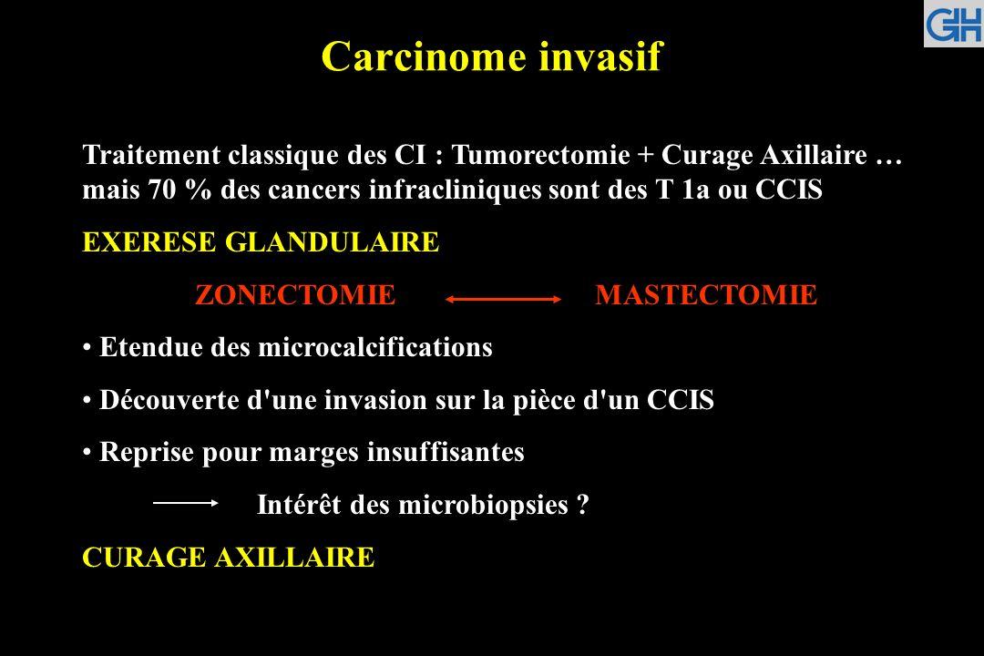 Carcinome invasif Traitement classique des CI : Tumorectomie + Curage Axillaire … mais 70 % des cancers infracliniques sont des T 1a ou CCIS EXERESE G