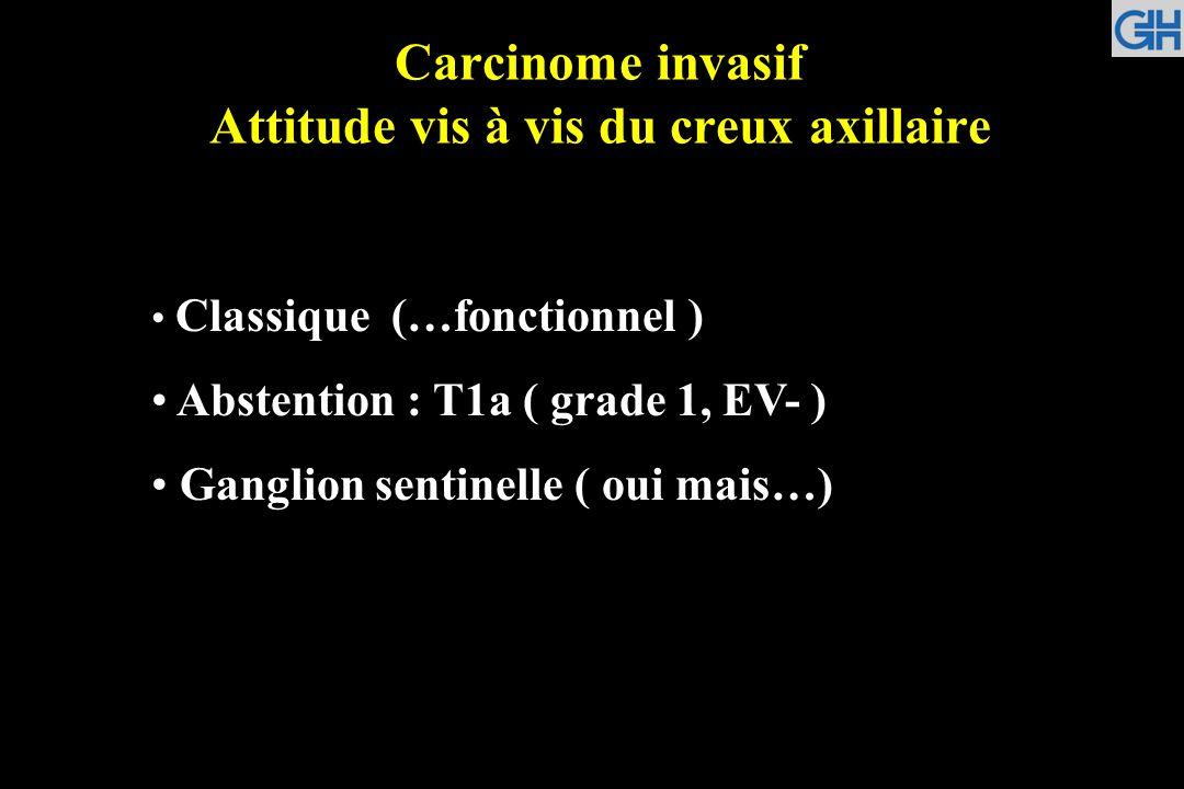 Carcinome invasif Attitude vis à vis du creux axillaire Classique (…fonctionnel ) Abstention : T1a ( grade 1, EV- ) Ganglion sentinelle ( oui mais…)