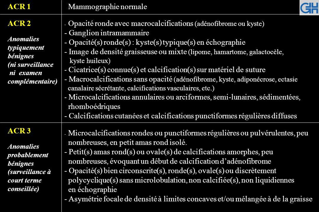 ACR4 Anomalie indéterminée ou suspecte (vérification histologique) ACR 5 Anomalie évocatrice dun cancer - Microcalcifications punctiformes régulières nombreuses et/ou groupées en amas aux contours ni ronds ni ovales - Microcalcifications pulvérulentes groupées et nombreuses - Microcalcifications irrégulières, polymorphes ou granulaires, peu nombreuses - Image(s) spiculée(s) sans centre dense - Opacité(s) non liquidienne(s) ronde(s) ou ovale(s) aux contours lobulés, ou masqués, ou ayant augmenté de volume - Distorsion architecturale en dehors dune cicatrice connue et stable - Asymétrie(s) ou surcroît(s) de densité localisé(s) à limites convexes ou évolutif(s) - Microcalcifications vermiculaires, arborescentes ou microcalcifications irrégulières, polymorphes ou granulaires, nombreuses et groupées - Groupement de microcalcifications quelle que soit leur morphologie, dont la topographie est galactophorique - Microcalcifications associées à une anomalie architecturale ou à une opacité - Microcalcifications groupées ayant augmenté en nombre ou microcalcifica- tions dont la morphologie et la distribution sont devenues suspectes - Opacité mal circonscrite aux contours flous et irréguliers - Opacité spiculée à centre dense