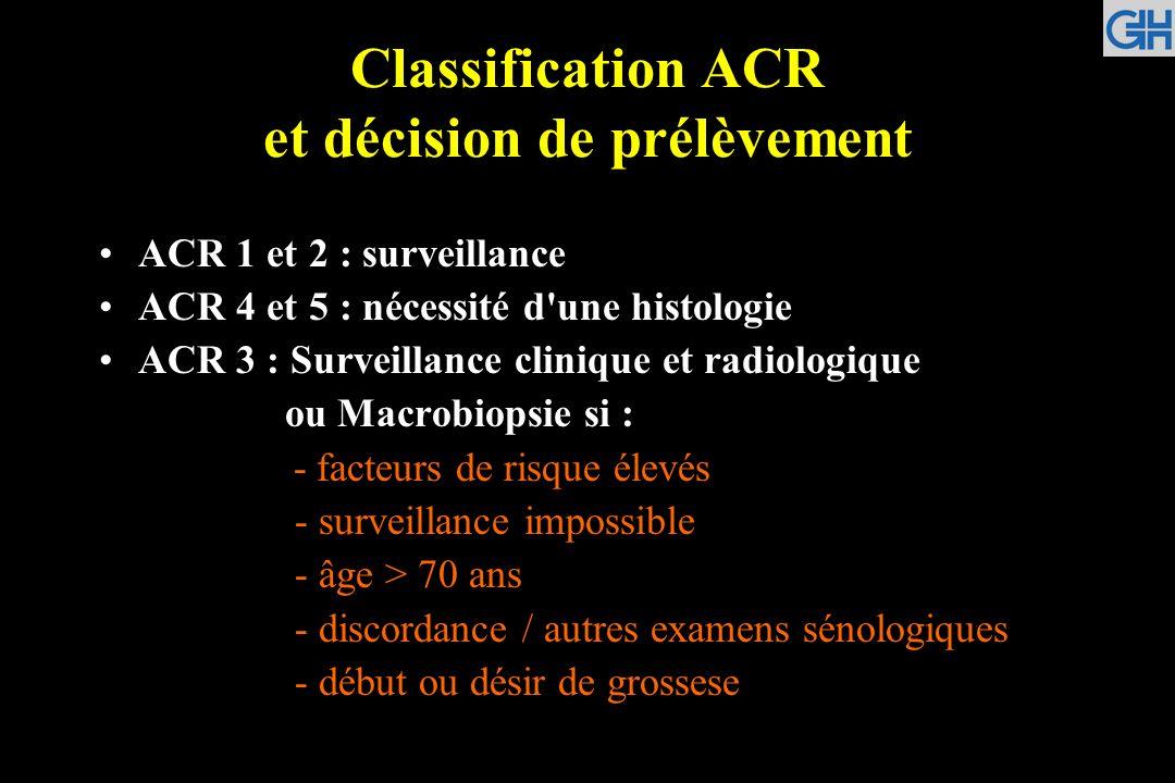 Classification ACR et décision de prélèvement ACR 1 et 2 : surveillance ACR 4 et 5 : nécessité d'une histologie ACR 3 : Surveillance clinique et radio