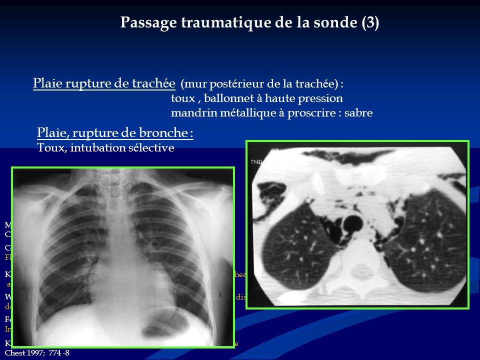 Passage traumatique de la sonde (3) Plaie, rupture de oesophage Plaie rupture de trach é e (mur post é rieur de la trach é e) : toux, ballonnet à haut