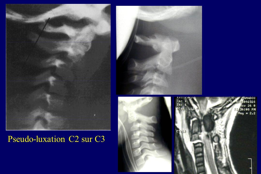 Association TC grave et lésion du rachis cervical Adultes 1272 blessés => TC + lésion cervicale : 1,8 % O' Malley et coll. J Trauma 1988 228 blessés =
