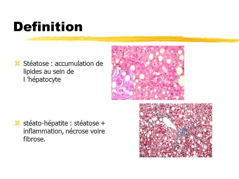 Definition zStéatose : accumulation de lipides au sein de l hépatocyte zstéato-hépatite : stéatose + inflammation, nécrose voire fibrose.