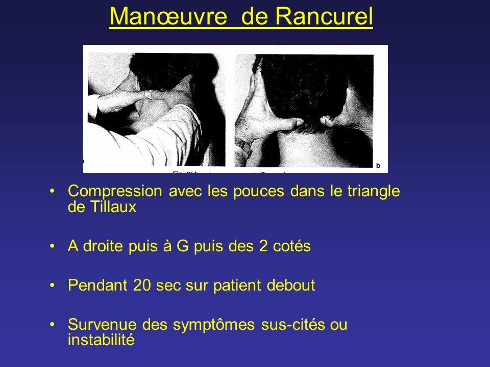 Manœuvre de Rancurel Compression avec les pouces dans le triangle de Tillaux A droite puis à G puis des 2 cotés Pendant 20 sec sur patient debout Surv