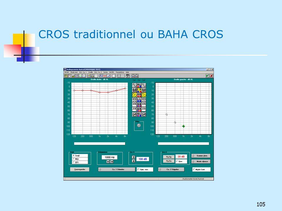 CROS traditionnel ou BAHA CROS 105