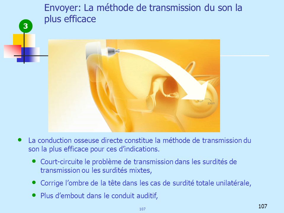 Envoyer: La méthode de transmission du son la plus efficace 3 La conduction osseuse directe constitue la méthode de transmission du son la plus effica