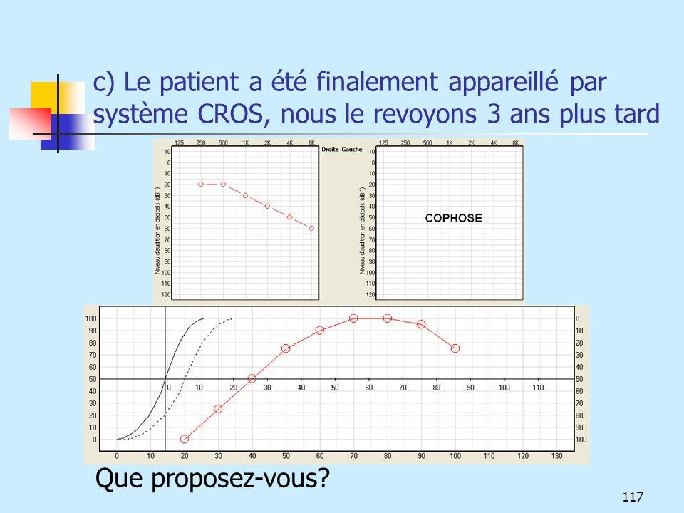 c) Le patient a été finalement appareillé par système CROS, nous le revoyons 3 ans plus tard Que proposez-vous? 117