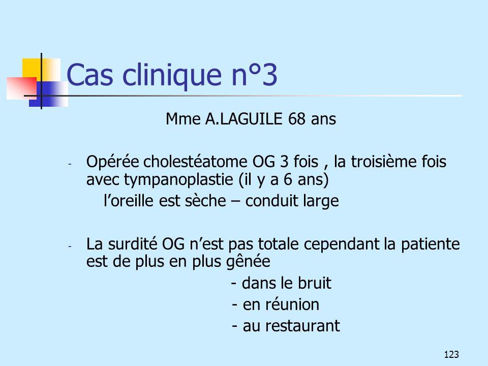 Cas clinique n°3 Mme A.LAGUILE 68 ans - Opérée cholestéatome OG 3 fois, la troisième fois avec tympanoplastie (il y a 6 ans) loreille est sèche – cond