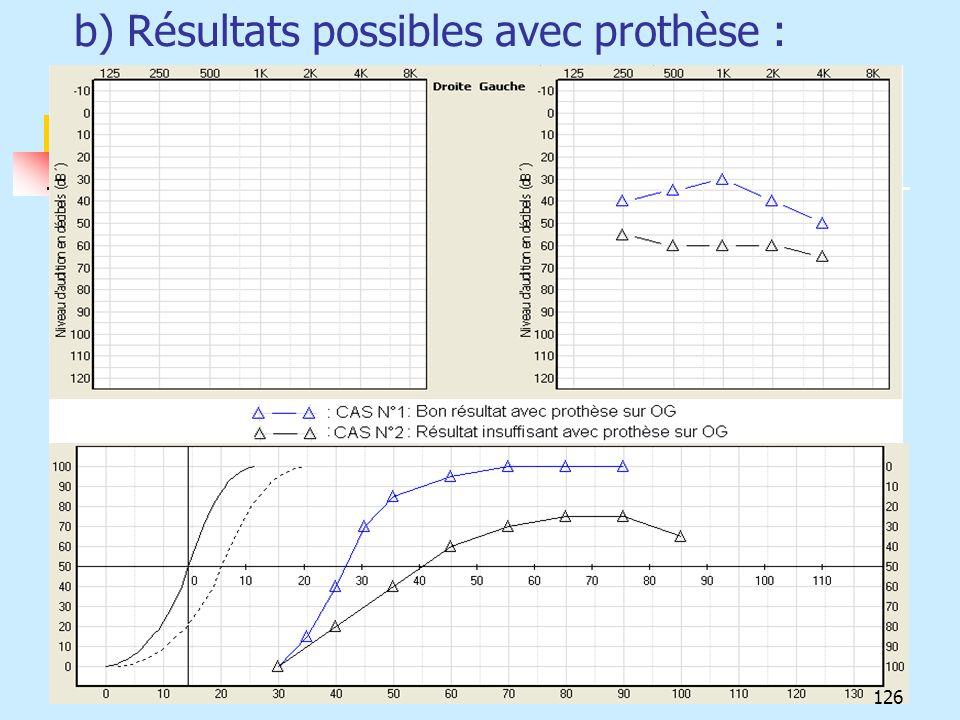 b) Résultats possibles avec prothèse : 126