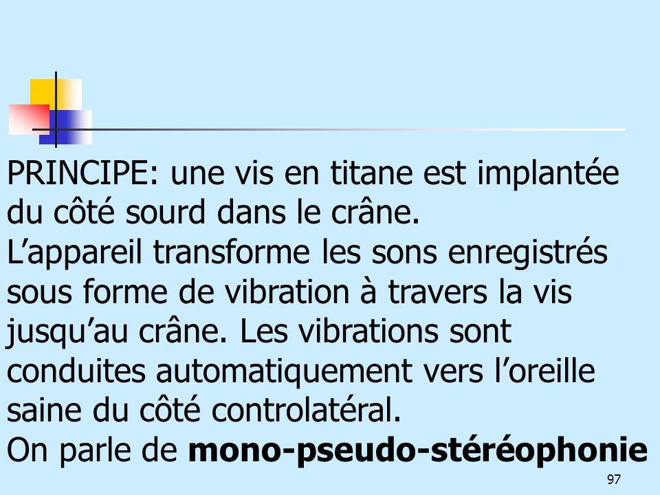 PRINCIPE: une vis en titane est implantée du côté sourd dans le crâne. Lappareil transforme les sons enregistrés sous forme de vibration à travers la