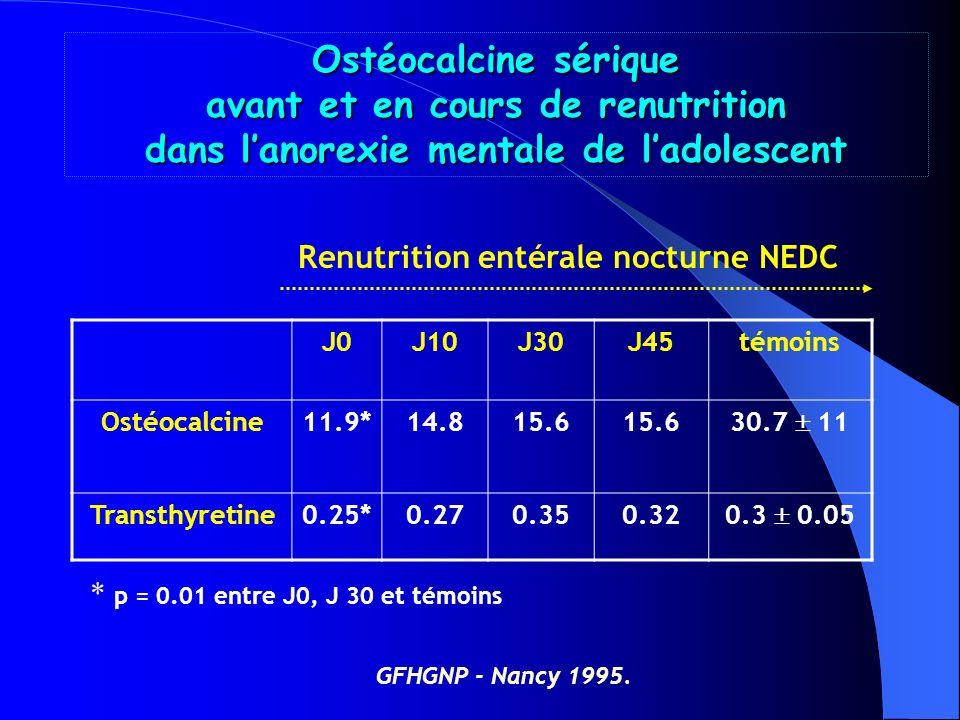 NUTRITION & PATHOLOGIE OSSEUSE Lanorexie mentale : ostéopénie = complication majeure avec risque de fracture P. ALVIN et coll. Arch Pediatr 1994 ; 1 :