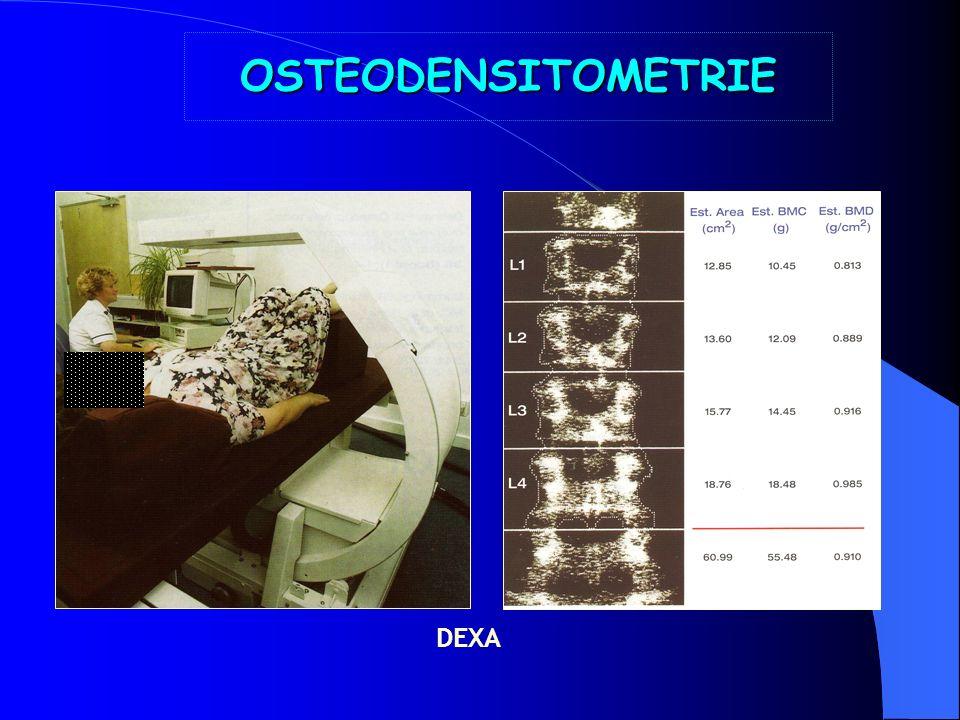 OS NORMAL OSTEOPOROSELOSTEOPOROSE