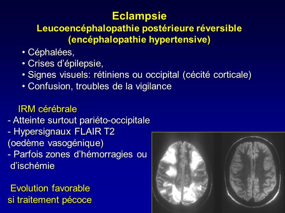 Angiopathie cérébrale du post partum Angiopathie cérébrale aigue réversible: rétécissements artériels segmentaires multiples et réversibles des artèresAngiopathie cérébrale aigue réversible: rétécissements artériels segmentaires multiples et réversibles des artères cérébrales de moyen et petit calibre Plus fréquente dans la première semainePlus fréquente dans la première semaine Association:Association: Eclampsie, Eclampsie, Dérives ergot de seigle Dérives ergot de seiglebromocriptine