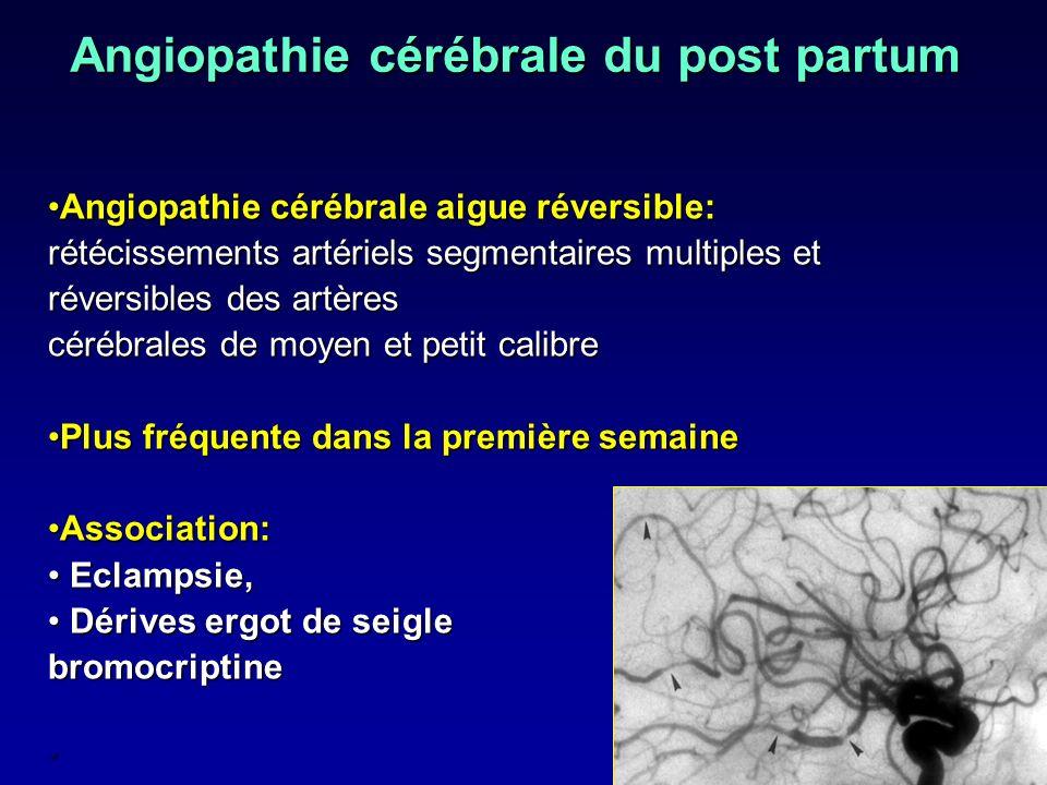 Angiopathie cérébrale du post partum Angiopathie cérébrale aigue réversible: rétécissements artériels segmentaires multiples et réversibles des artère