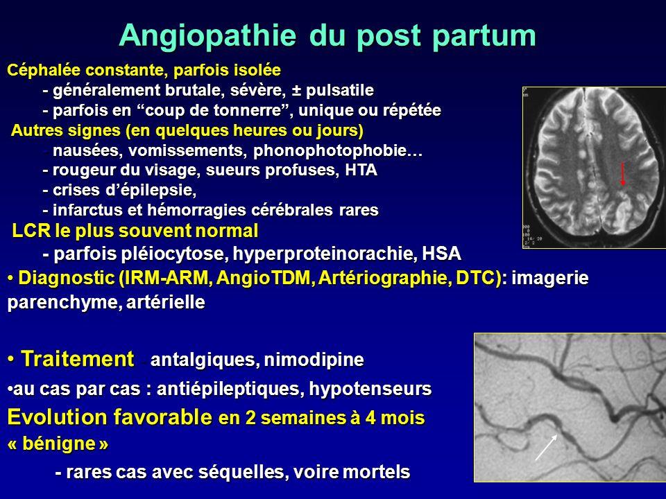 Angiopathie du post partum Céphalée constante, parfois isolée - généralement brutale, sévère, ± pulsatile - parfois en coup de tonnerre, unique ou rép