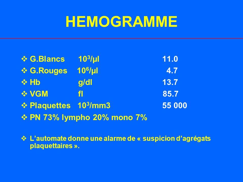BIOLOGIE (J0) 1.Bilan hépatique: –Bilirubine (conjuguée/totale): 39/69 mcmol/l –ALAT: 113 u/l (Nl: 7-32) –ASAT: 165 u/l (Nl: 10-30) –Gamma GT: 470 U/L (Nl:5-36) –LDH: 3728 U/L 2.TP: 100% 3.BIC: Na: 128 mmol/l, K: 3.7 mmol/l, Urée: 5.9 mmol/l, Créatinine: 78 mcmol/l 4.