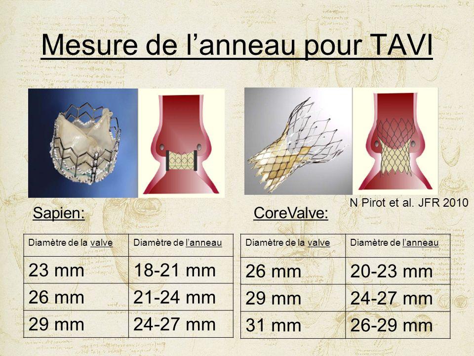 Mesure de lanneau pour TAVI Diamètre de la valveDiamètre de lanneau 23 mm18-21 mm 26 mm21-24 mm 29 mm24-27 mm N Pirot et al. JFR 2010 Sapien:CoreValve