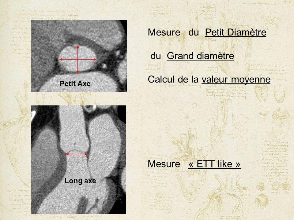 Petit Axe Long axe Mesure du Petit Diamètre du Grand diamètre Calcul de la valeur moyenne Mesure « ETT like »