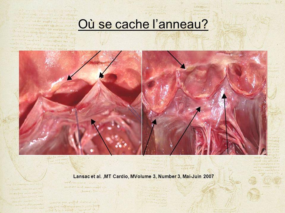 Lansac et al.,MT Cardio, MVolume 3, Number 3, Mai-Juin 2007 Où se cache lanneau?