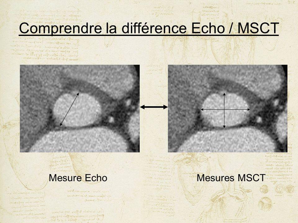 Mesure EchoMesures MSCT
