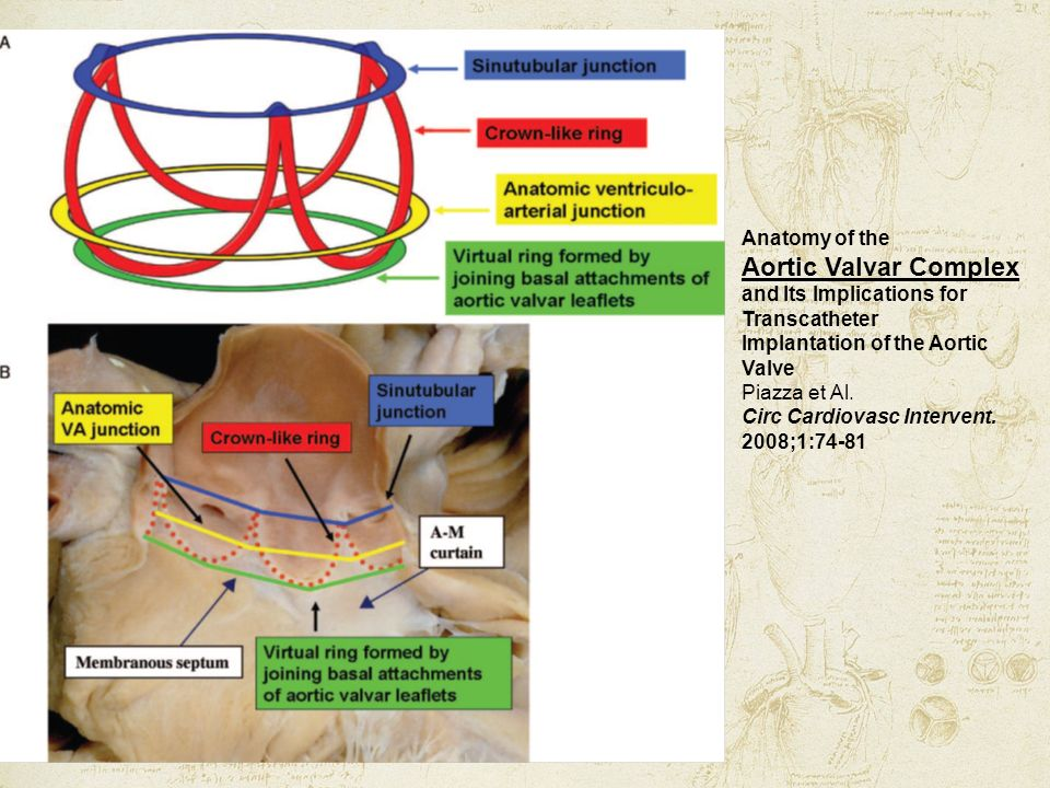 Anatomy of the Aortic Valvar Complex and Its Implications for Transcatheter Implantation of the Aortic Valve Piazza et Al.
