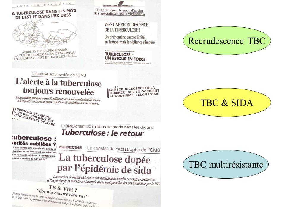 Amenophis IV Tuberculose: maladie antique La tuberculose (TBC) est une maladie infectieuse dûe à une mycobactérie: Mycobacterium tuberculosis (BK) 1er