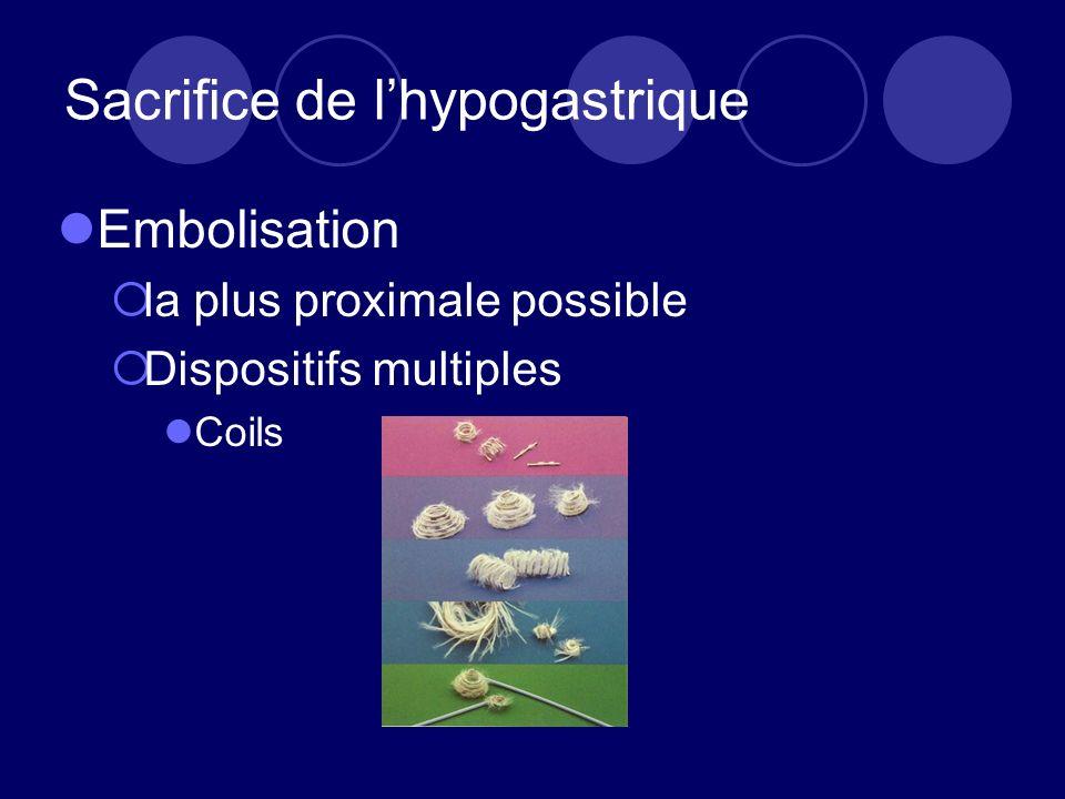 Sacrifice de lhypogastrique Embolisation la plus proximale possible Dispositifs multiples Coils