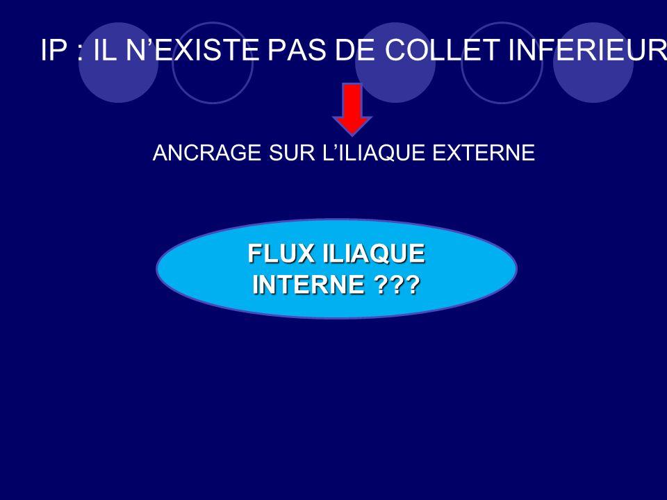 IP : IL NEXISTE PAS DE COLLET INFERIEUR FLUX ILIAQUE INTERNE ??? ANCRAGE SUR LILIAQUE EXTERNE