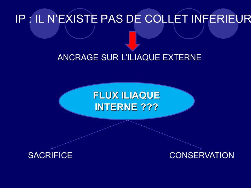 IP : IL NEXISTE PAS DE COLLET INFERIEUR FLUX ILIAQUE INTERNE ??.