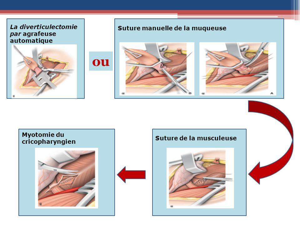 Myotomie du cricopharyngien Suture de la musculeuse Suture manuelle de la muqueuse La diverticulectomie par agrafeuse automatique ou