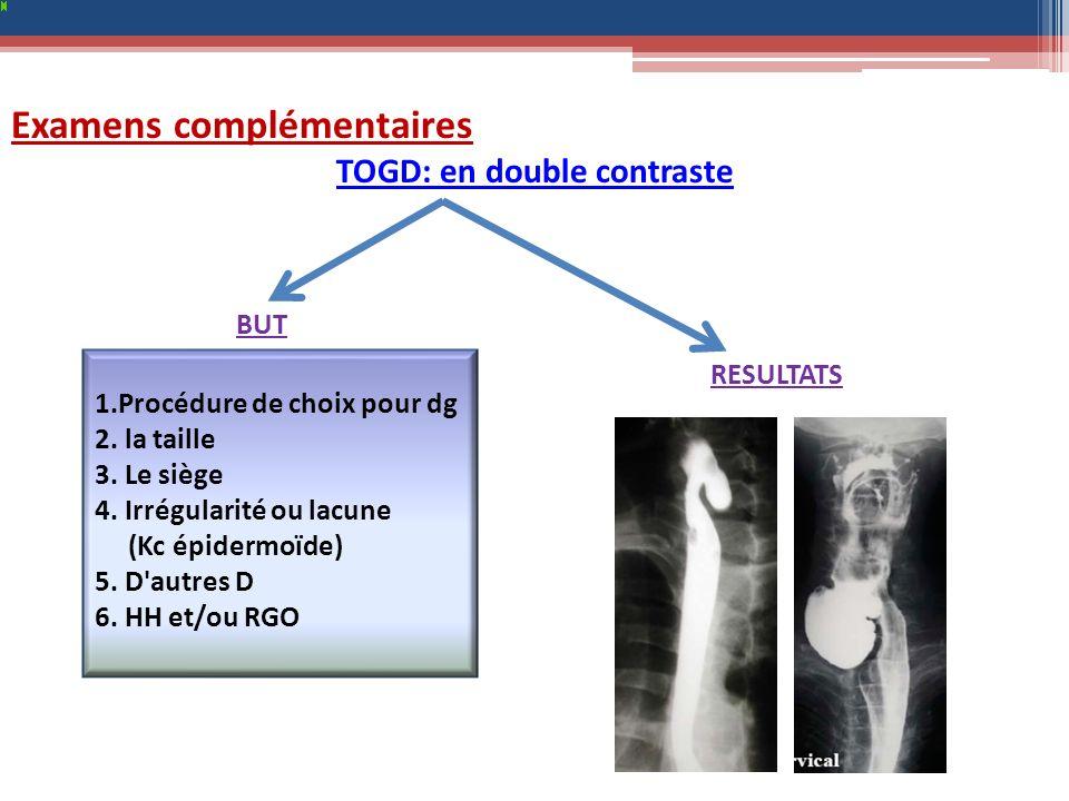 Examens complémentaires TOGD: en double contraste 1.Procédure de choix pour dg 2. la taille 3. Le siège 4. Irrégularité ou lacune (Kc épidermoïde) 5.