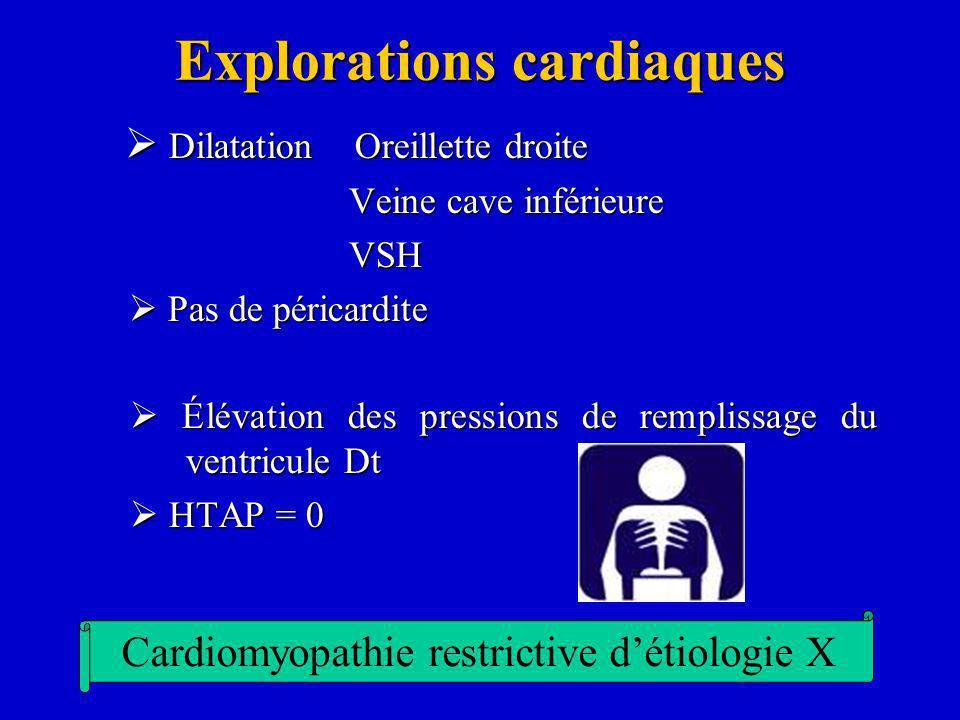Explorations cardiaques Dilatation Oreillette droite Dilatation Oreillette droite Veine cave inférieure Veine cave inférieure VSH VSH Pas de péricardi