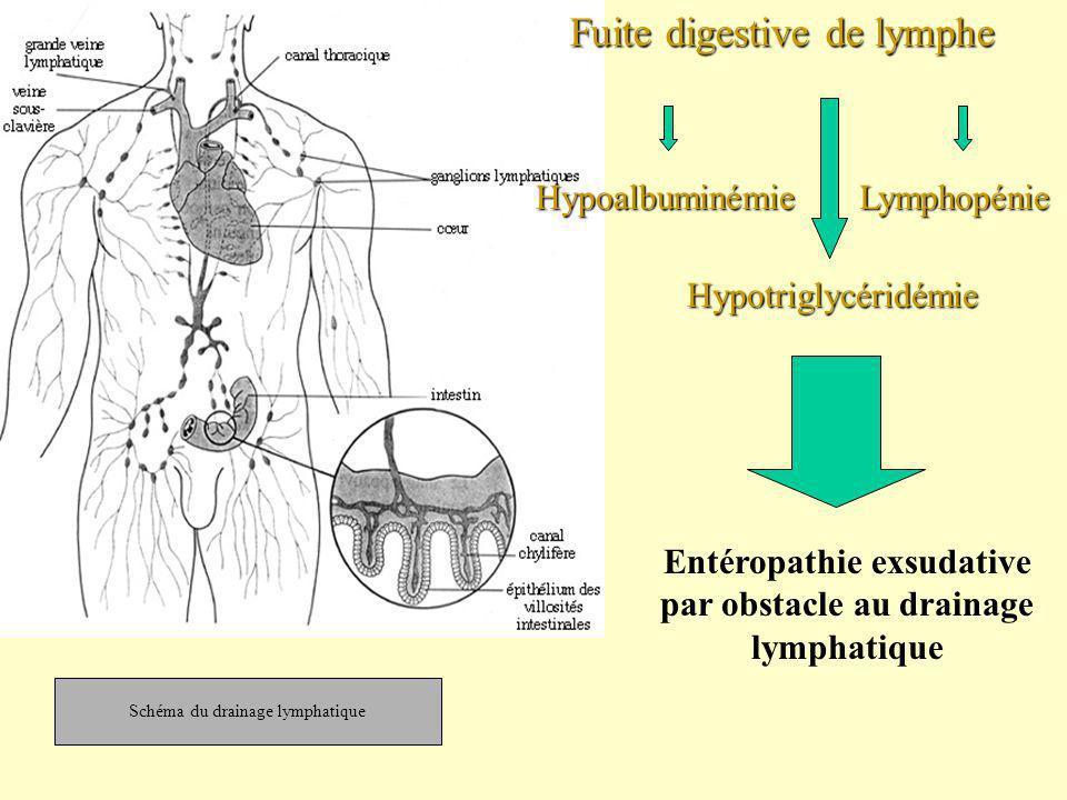 Hypoalbuminémie Fuite digestive de lymphe Entéropathie exsudative par obstacle au drainage lymphatique Lymphopénie Hypotriglycéridémie Schéma du drain
