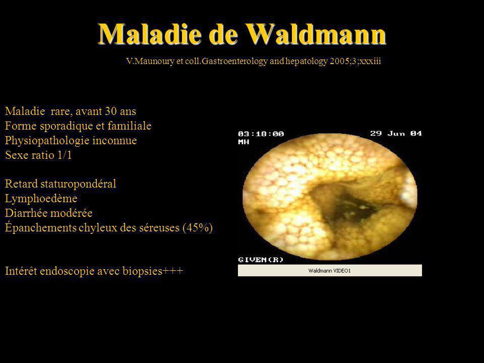 Maladie de Waldmann V.Maunoury et coll.Gastroenterology and hepatology 2005;3;xxxiii Maladie rare, avant 30 ans Forme sporadique et familiale Physiopa