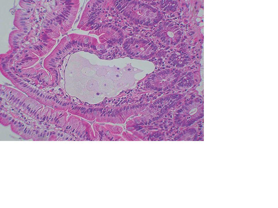 Scanner Thoraco-abdominal Élimination de pathologies obstructives acquises du système lymphatique Élimination de pathologies obstructives acquises du système lymphatique Péricardite constrictive Péricardite constrictive Cancer du pancréas Cancer du pancréas Fibrose rétropéritonéale Fibrose rétropéritonéale ADP mésentériques ADP mésentériques